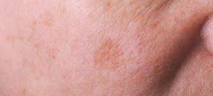 sun-allergy